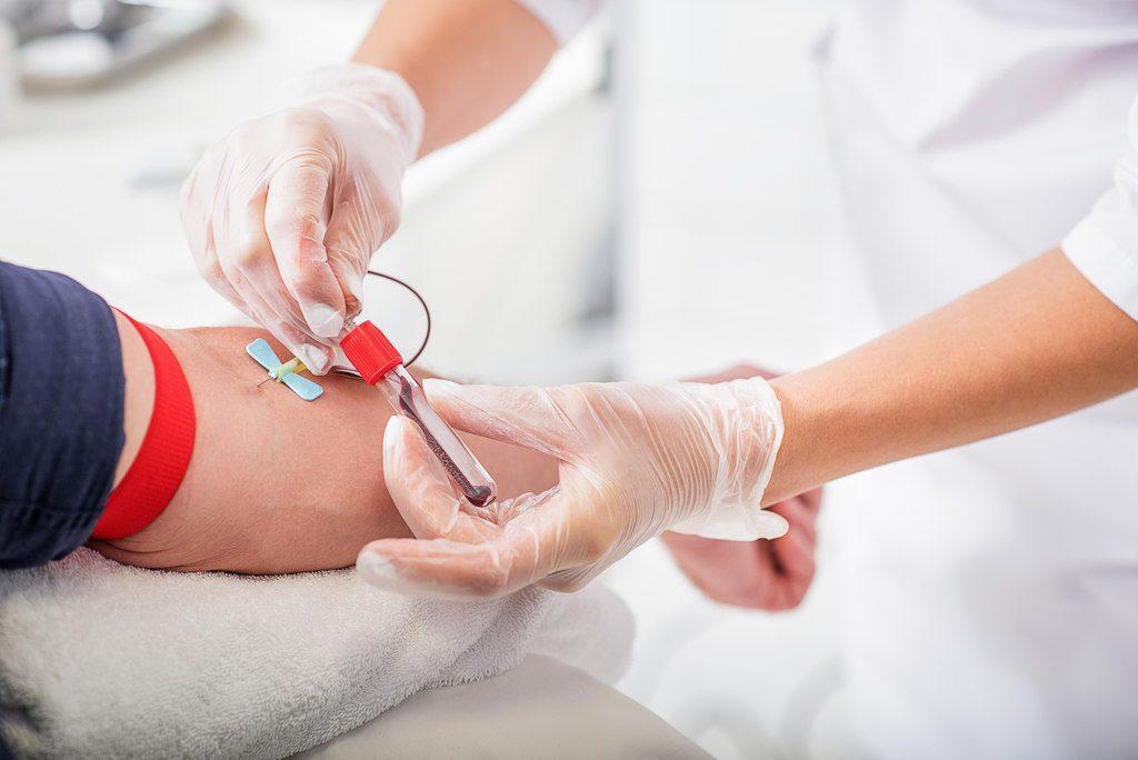 Hemoes está com baixa no estoque de sangue e faz apelo a doadores